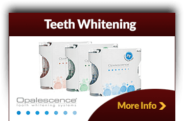 Teeth Whitening Menifee